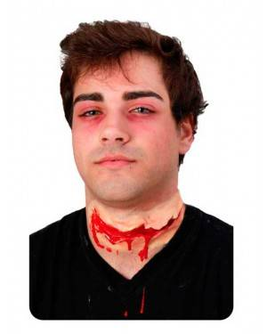 Cicatrice Sanguinante Collo